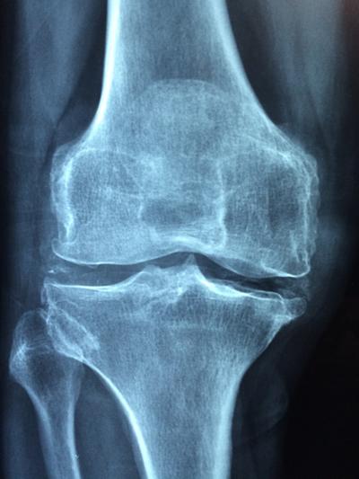 Mercury Bay Radiology X-Ray Services